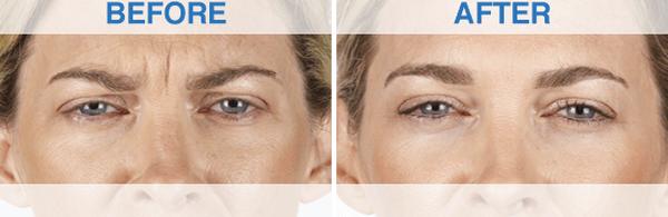 botox and dermal fillers vina laser med spa