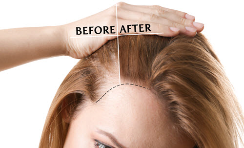 Hair loss restoration vina laser med spa