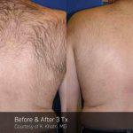 Laser Hair Removal VINA Laser Med Spa Saginaw MI