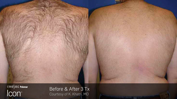 Laser Hair Removal VINA Laser Med Spa Saginaw MI