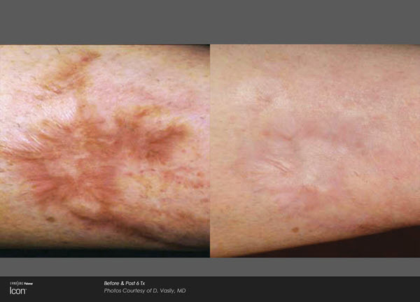 Scar Removal Before and After VINA Laser Med Spa Saginaw MI