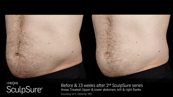 SculpSure Abdomen Before and After VINA Laser Med Spa Saginaw