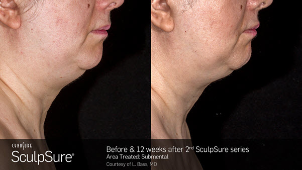 SculpSure Chin Before and After VINA Laser Med Spa Saginaw