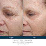 SkinPen Microneedling VINA Laser Med Spa Saginaw MI