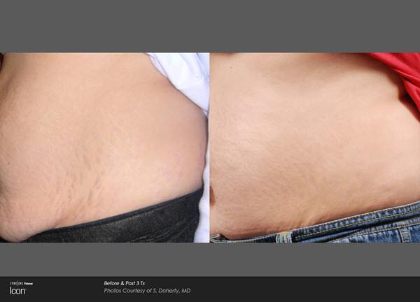 Stretch Mark Before and After VINA Laser Med Spa Saginaw MI