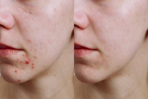 acne treatment vina laser med spa