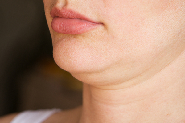 double chin treatment vina laser med spa