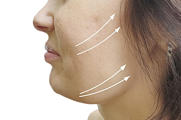 skin tightening treatment vina laser med spa